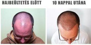 hajátültetés után